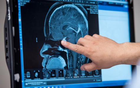UCSF Brain Tumor Center Online Consult Service