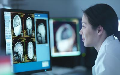 UCSF Brain Tumor Center Clinical Trials